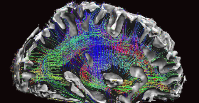 Human brain neurological mapping